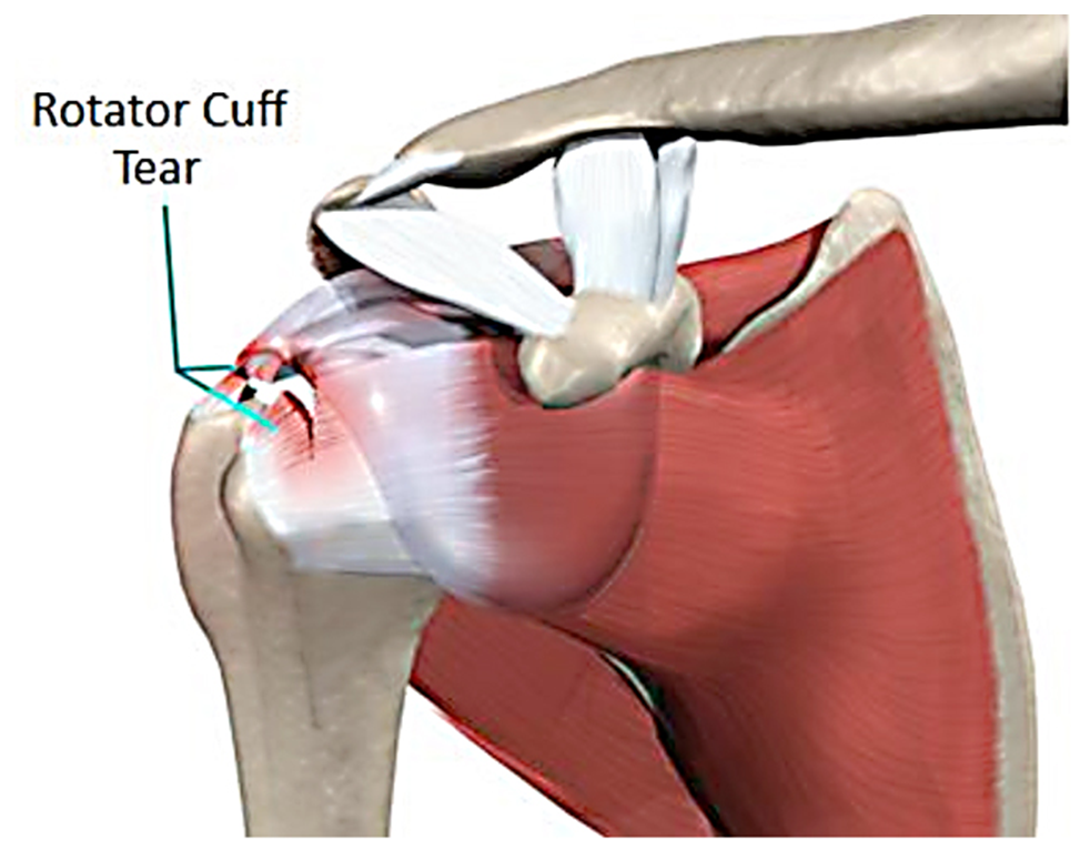 Rotator Cuff Injuries