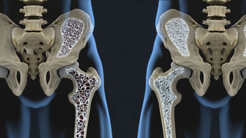 Nutrition and Osteoporosis 1